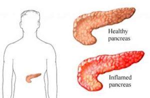 Acute_pancreatitis