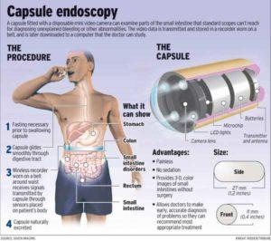 Capsule-endoscopy