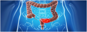 Colonoscopy-screening-for-colon-cancer.-when-should-you-get-checked-1